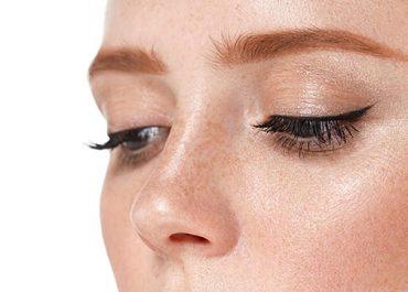 Alectomia: o que é e como é feita a plástica no nariz